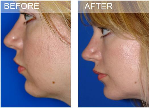 chin surgery dallas, Chin Surgery