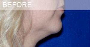 neck liposuction before photo dallas plastic surgeon dr sule
