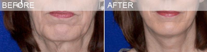 necklift dallas surgery