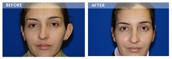 ear surgeon dallas, Ear Surgery