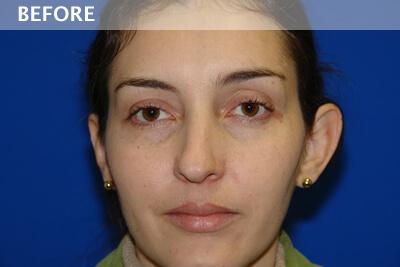 , Patient Case #2252